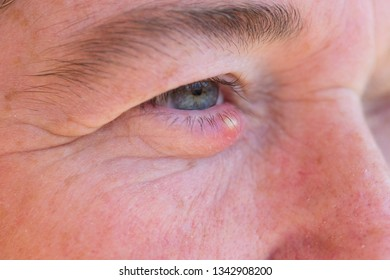 A painful and swollen Stye on an Eye.