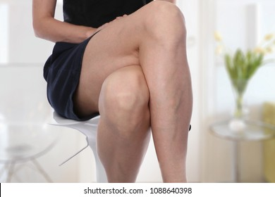 Painful varicose and spider veins on female legs.