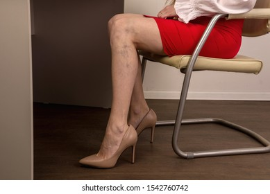 Painful varicose and spider veins on female legs. Phlebology and DVT.