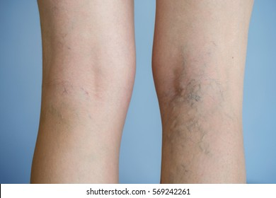 Painful varicose veins (spider veins, varices) on a severely affected leg. Ageing, old age disease, aesthetic problem concept.