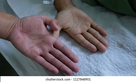 Anaemia Stock Photos, Images & Photography | Shutterstock