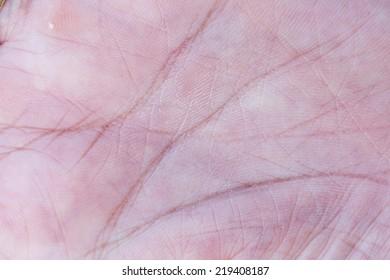 palm skin