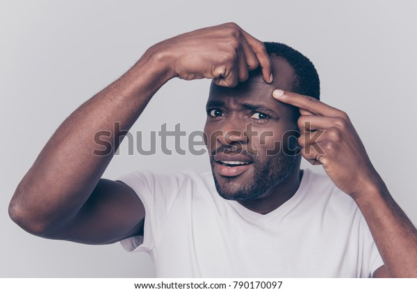 Pampering clean and clear concept. Close up photo of upset unsatisfied guy wearing white t-shirt is squeezing out a pimple on the forehead, isolated on grey background