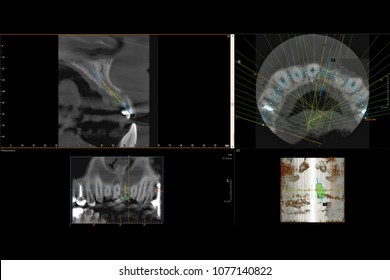 Panoramic dental 3D X-Ray of teeth from computer screen. Frontal facial images. Tooth implant. Implantology.