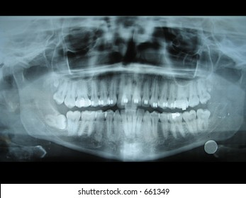 Panoramic dental radiology slide from my jaw.  This slide helps dentists know the position of teeth and molars.