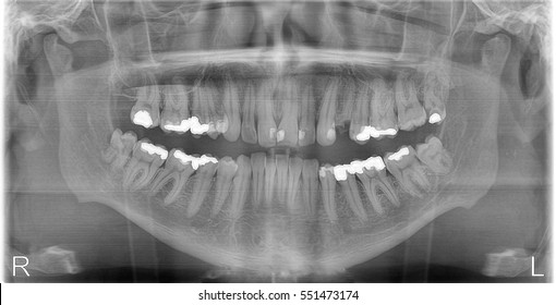 Panoramic dental RTG (X-Ray) of teeth. Monochrome facial image.
