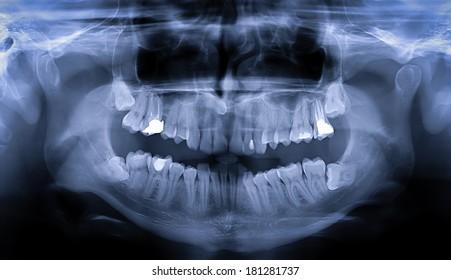 Panoramic dental teeth X-Ray