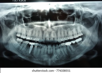 panoramic dental x ray with implant