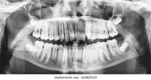 Panoramic dental x-ray of child of 13 years. Black and white image roentgen teeth upper and lower jaw. Negative shot of the digital picture