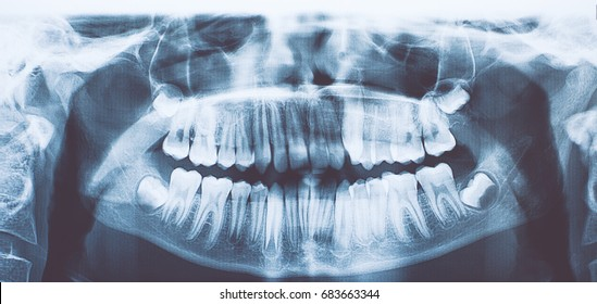Panoramic dental x-ray of child/toned photo