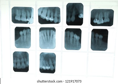 Panoramic dental X-Ray for dentist