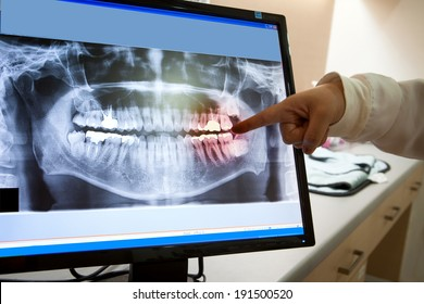 Panoramic dental X-Ray with hands point in Computer screen and film