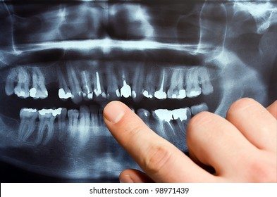 Panoramic dental X-Ray with hands point