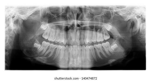 Panoramic dental X-Ray, the human skull and Teeth