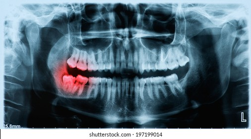 Panoramic dental x-ray image of teeth and mouth with wisdom teeth on the right side of the face (image left) shown red.