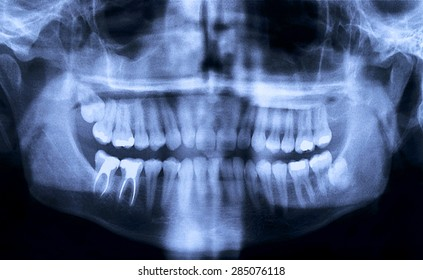 Panoramic dental X-Ray from a mouth with some tooth fillings, and a wisdom tooth crashed into a molar.