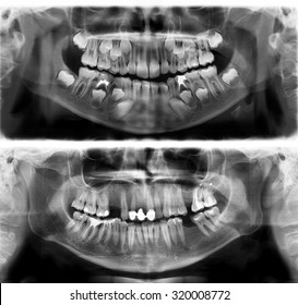 Panoramic dental x-ray tooth's of young man of 30 (thirty) and child of 7 (seven) years. Black and white image roentgen teeth upper and lower jaws of skull. The medical digital picture