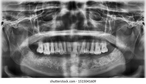 Panoramic film showed osteolytic lesion due to osteoradionecrosis of lower jaw. patient history of tongue resection and radiotherapy.