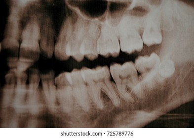 Panoramic picture of supercomplete teeth. x-ray