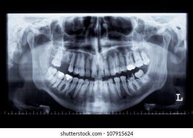 Panoramic radiograph of a human jaw