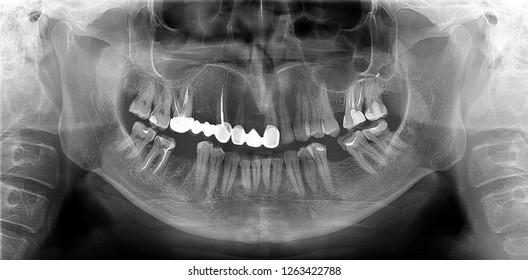 A panoramic radiograph is a panoramic scanning dental X-ray of the upper and lower jaw. This is a focal plane tomography shows the maxilla and mandible of a forty year old man.