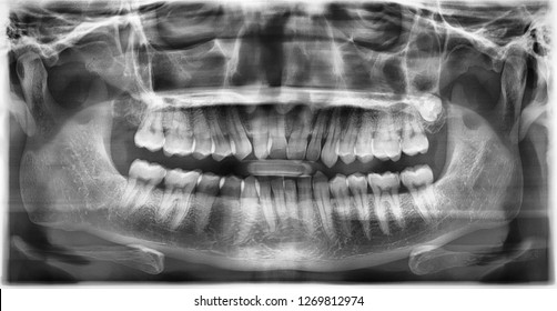 Panoramic radiograph show left maxillary embedded third molar tooth.