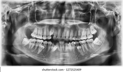 Panoramic radiograph show multiple embedded and impaction teeth at both maxilla and mandible area.