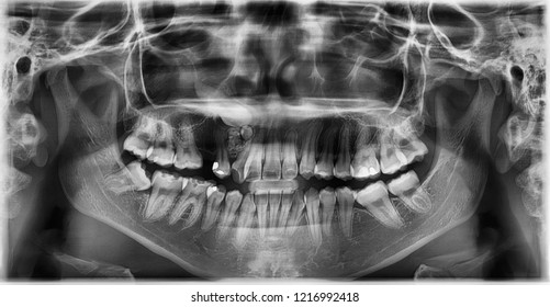 Panoramic radiograph show right maxillary embedded canine and second premolar teeth with odontoma.