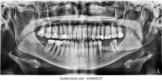 Panoramic X-ray image of upper and lower jaw teeth by tomography. 2D