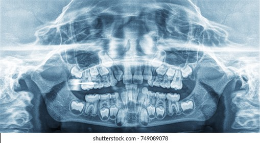 Panoramic X-Ray teeth of a child.