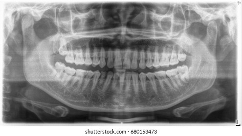 Pantomimic view X-ray (OPG)