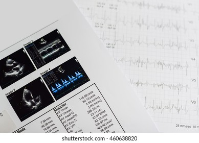 The paper reports with echocardiogram in hospital