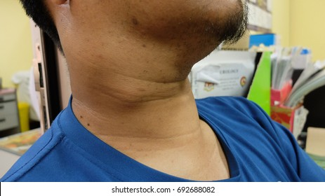 Papillary thyroid Cancer with Lymph Node neck metastasis
