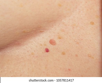 Papillomas and hemangiomas. Multiple different species on the human skin, located in the chest area.