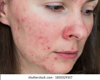 papulopustular rosacea, close-up of the patient's cheek - the consequences of prolonged wearing of a mask