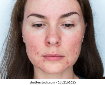 papulopustular rosacea, close-up of the patient's face - the consequences of prolonged wearing of a mask
