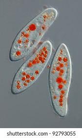 Paramecium caudatum with colored food vacuole