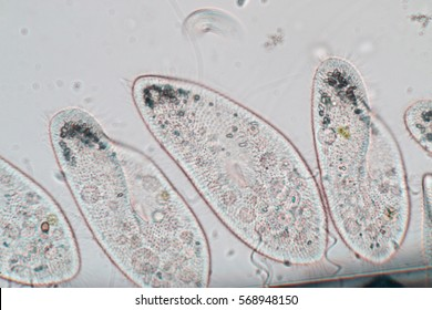 Paramecium caudatum is a genus of unicellular ciliated protozoan and Bacterium under the microscope.(soft focus and have Grain/Noise )