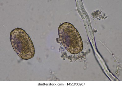 Parasite egg Ascaris lumbricoides find with microscope in laboratory.