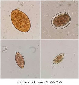 The parasites in stool. The upper left is Fasiola spp. egg, the upper right is Hookworm, the lower left is Trichuris trichiura egg and the lower right is Enterobius vermicularis egg (Selective focus).