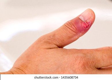 Paronychia, swollen finger with fingernail bed inflammation due to bacterial infection on a toddlers hand. finger swollen with inflammation due to Nail ripped infection.