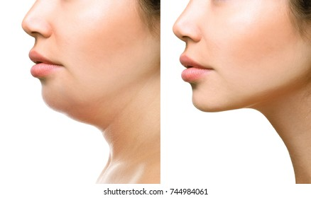 Part of face, woman with the double and perfect chin isolated on white background Beauty concept.