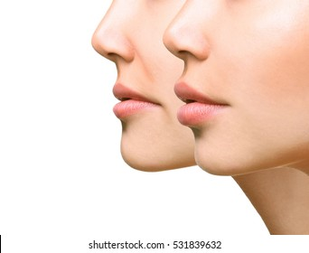 Part of face, young woman close up. Sexy plump lips after filler injection and syringe injection to nasolabial fold. Beauty concept.