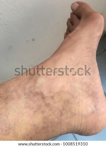 varicose veins foot