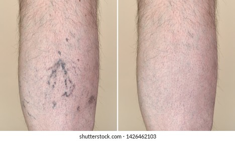 Part of a leg (calf) of the man with varicose veins and capillaries before and after medical treatment