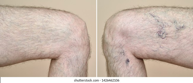 Part of a leg (thigh) of the man with varicose veins and capillaries before and after medical treatment