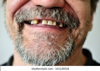 part of a man's face with a smiling toothless