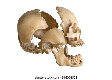 Parts of Human skull in right side view