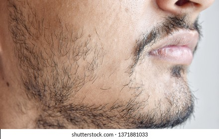 Patchy Beards In Male