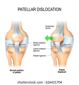Patellar dislocation. Normal position of kneecap and Patella displaced. Anatomy of the Knee